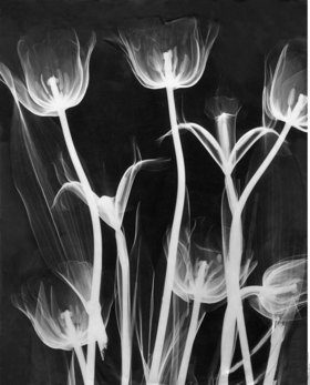 Roentgen picture of tulips